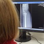 Noget om en brækket arm – Fødselsdagspigen og operation